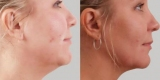 Впалые щеки: описание с фото, причины, эффективные spa, шаг за шагом инструкции для выполнения регулировки и подтяжки мышц лица
